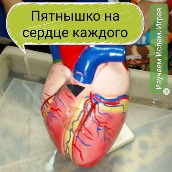 Пятнышко на сердце каждого
